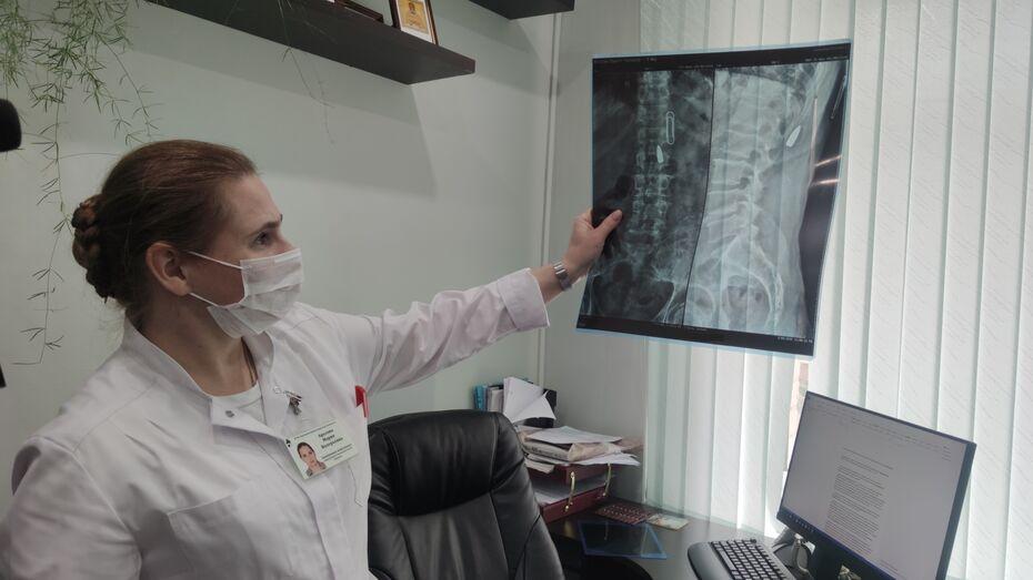 В Воронеже врачи достали из спины мужчины пулю времен Афганской войны