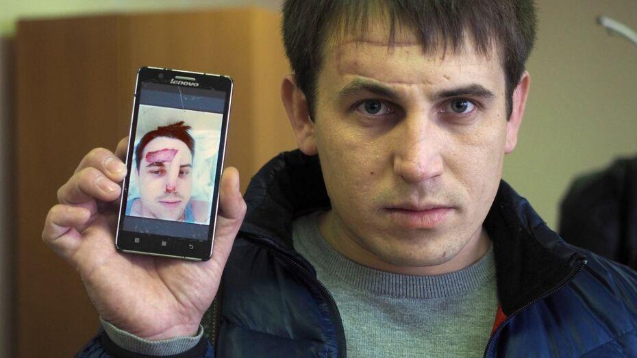 Воронежец получил 3 года условно за откушенный на корпоративе нос инженера