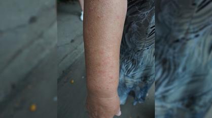 Комары атаковали жильцов воронежской многоэтажки после засора канализации