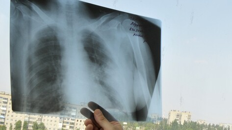 Воронежская область поборется за международную премию за лечение туберкулеза