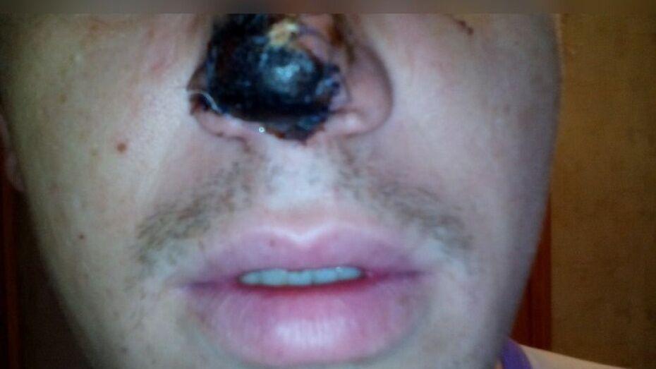 Откусивший нос воронежцу стоматолог впервые видел свою жертву