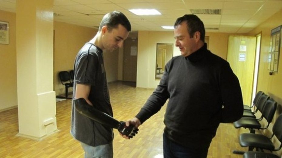 Воронежский фаерщик обрел новые биоэлектрические руки