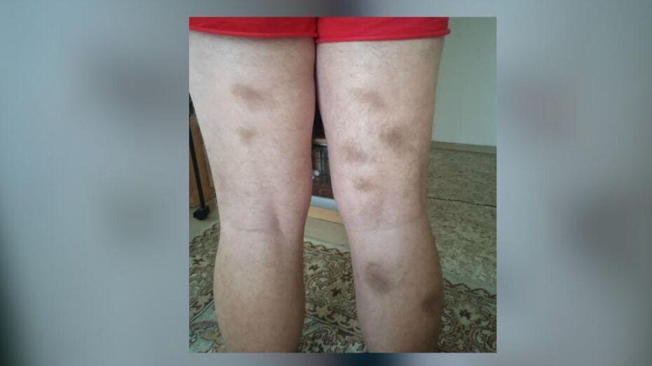 Подростки около 5 лет безнаказанно избивают инвалида-аутиста в Воронеже
