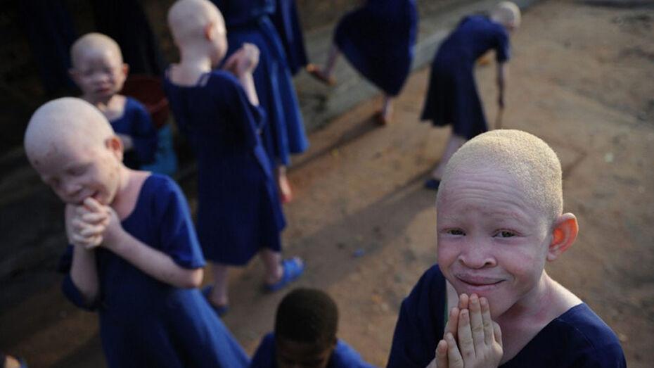 ООН выступила против ритуальных убийств танзанийских альбиносов