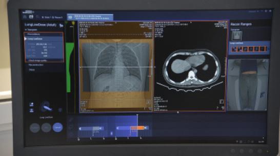 В воронежской детской больнице установят ультрасовременный компьютерный томограф