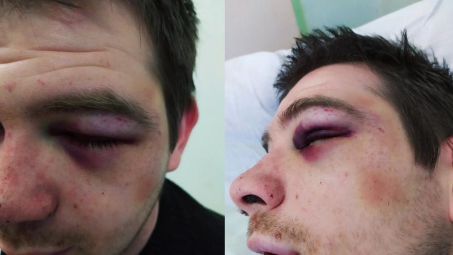 Полиция начала проверку по факту драки мужчин на глазах у маленьких детей под Воронежем